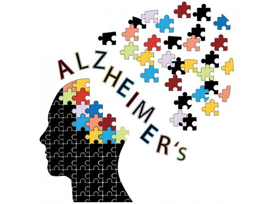 Head with brain and the word Alzheimer
