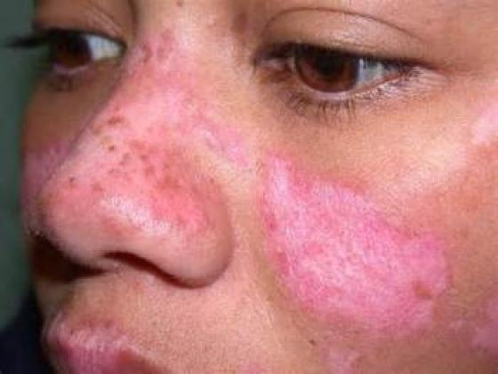 No image description provided for Caring For Lupus Affected Skin.