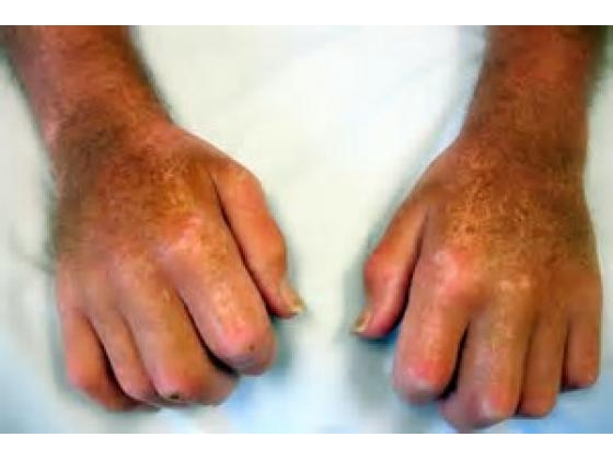 No image description provided for Contending With Scleroderma A Complex Problematic Ailment.