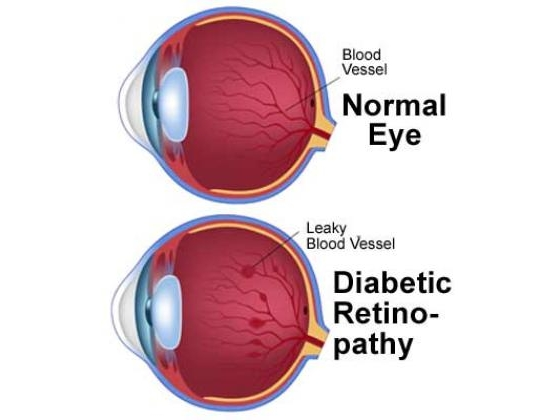No image description provided for Diabetes And Your Vision Health.