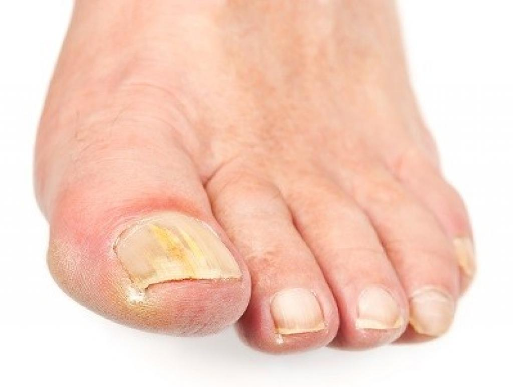 Foot with fungus intoenail