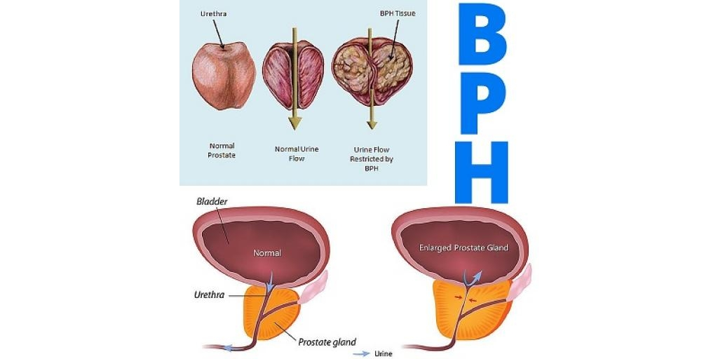 prostate gland images